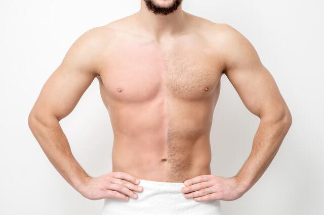 男性用脱毛器の成果