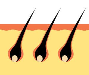 ブロッコリースプラウトを食べて増えた毛乳頭